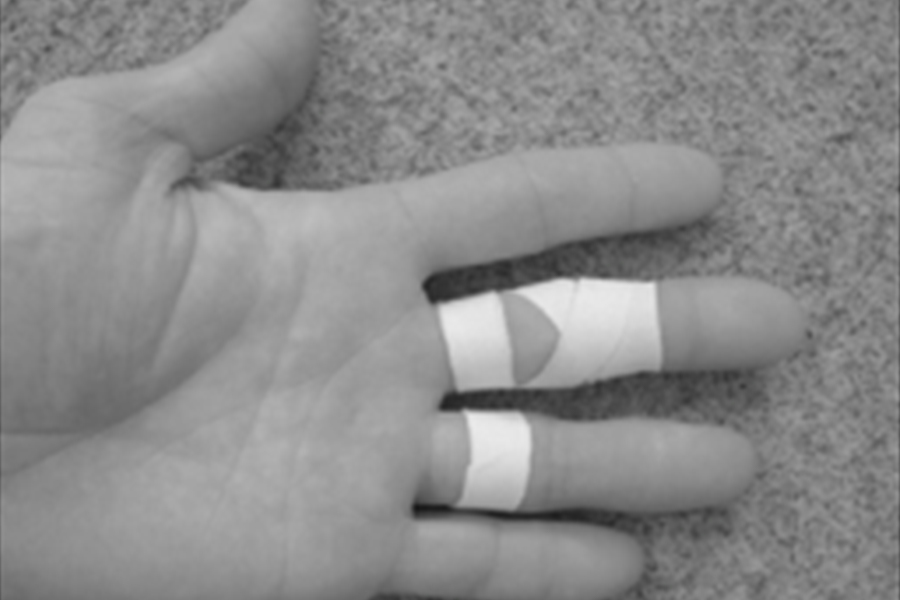 Taping fingers for rock climbing rehab